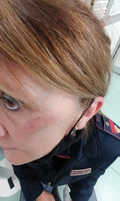 Vercelli, libera la donna che ha aggredito la poliziotta